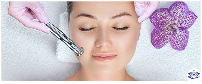 Microdermabrasion Treatment Near Capitola, CA